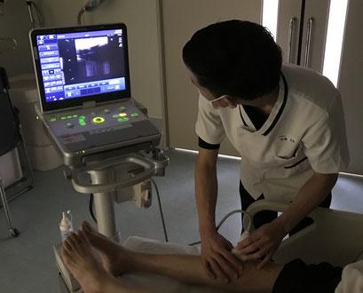 運動器超音波検査装置:筋や腱などといった運動器を非侵襲的に観察することができます。