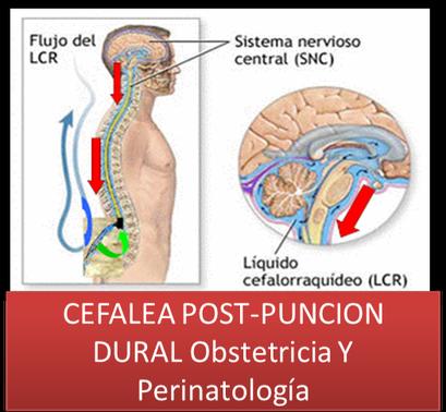 Como Manejar La Cefalea Post- Punción Dural En Obstetricia