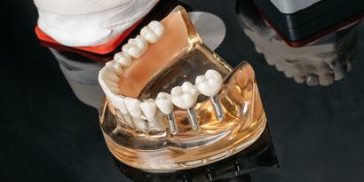 Implants | Dental practice Dr. Becker Zurich