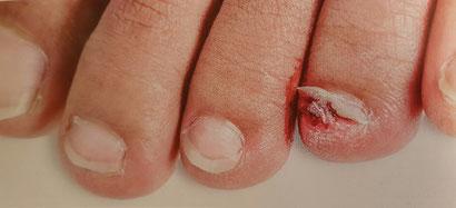 Abgerissener Nagel durch Schuhwerk und zu langer Nagel oder Unfall