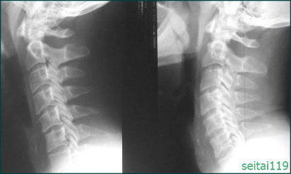 ストレートネック,頚椎の湾曲