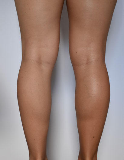 Instant Glow Leg Serum on the Right Leg