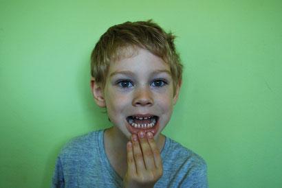 voorkomen is fijner dan gaatjes vullen - de lieve tandarts