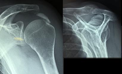 calcification d'épaule, aspiration sous arthroscopie chirurgie orthopédique Dr Rémi Toulouse