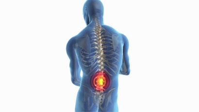 腰痛 治療 痛み
