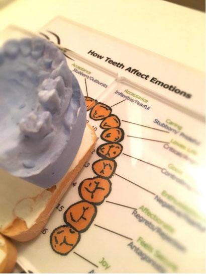 Zahnstörfelder müssen entdeckt und behoben werden. Ihre Auswirkungen auf unseren Gesamtorganismus sind beträchtlich.