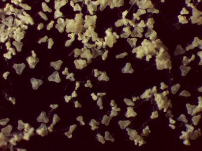 Gemeine Nachtkerzen (Oenothera biennis) Pollen 50 fach vergrößert unter einer Stereolupe. KROHNE