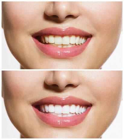 Durch Bleaching können Zähne schonen aufgehellt werden