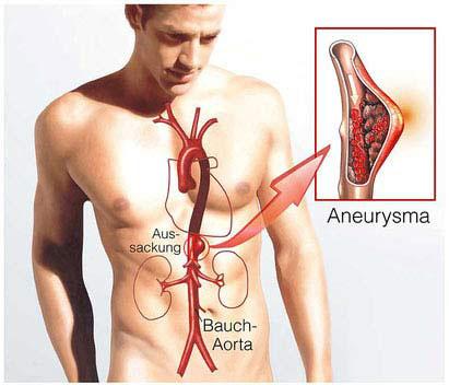 Aortendissektion und Aortenaneurysma hängen miteinander zusammen.