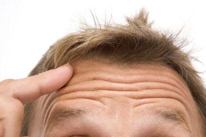 como iniciar el tratamiento de minoxidil alopecia
