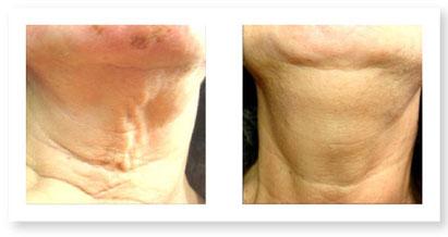 Lifting del viso e del corpo | plexr