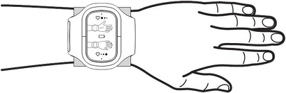 schematische Darstellung, wie das Inferum NBP 050 angelegt wird um eine blutdruckerhöhende Wirkung zu erreichen