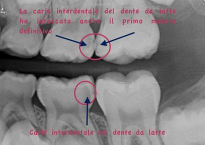 radiografia digitale nel bambino dove si vedono le carie nascoste tra dente e dente