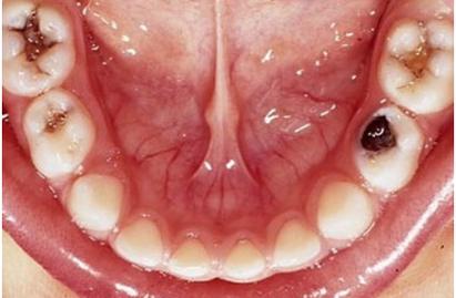 carie nei denti del bambino