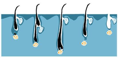 IPL Wirkungsweise für die effektive Haarentfernung
