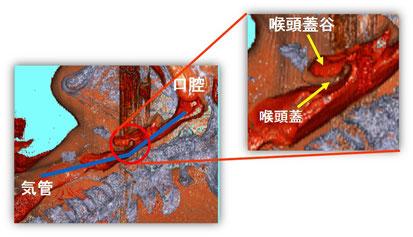 頸部前屈時のCT画像。口腔と気管に角度が付き誤嚥しなくなる