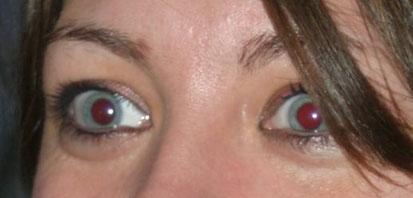 """Photo originale - Le flash a généré un effet """"yeux rouges"""""""