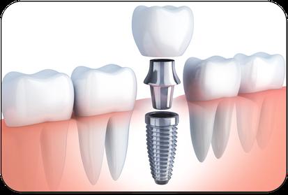 Implantat mit aufgesetzter Krone