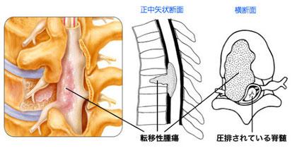 脊椎腫瘍絵図