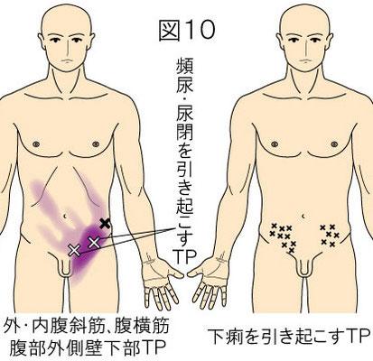 腹筋のトリガーポイントによる頻尿・尿閉・下痢・腹痛