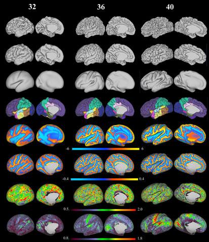 Reconstruction 3D de la surface corticale et de ses caractéristiques calculées à partir d'une IRM de cerveau bébé de sept, huit et neuf mois.