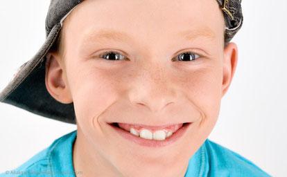 Ohne Headgear ist die kieferorthopädische Behandlung gleich viel angenehmer.