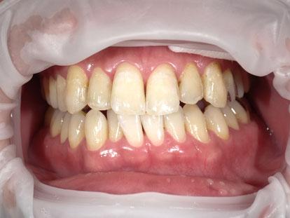 八戸市 くぼた歯科医院 ホワイトニング 安い おすすめ