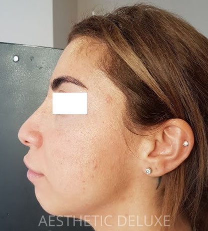 Nasenkorrektur und Kinnkorrektur mit Hyaluron vorher nachher Bilder