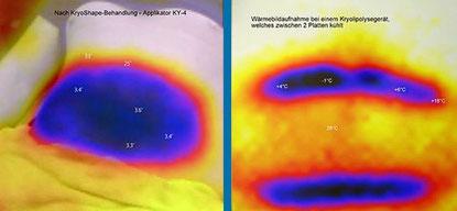 cool Shape Kryolipolyse Fettzellenvereisung bei Shape System Aarau