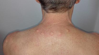 Die Neuraltherapie besteht aus dem Setzen von Hautquaddeln