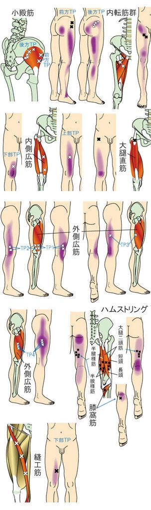 膝・下腿・足に痛みをもたらすトリガーポイント