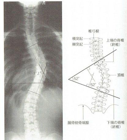 コブ角52度の患者さまのX線画像