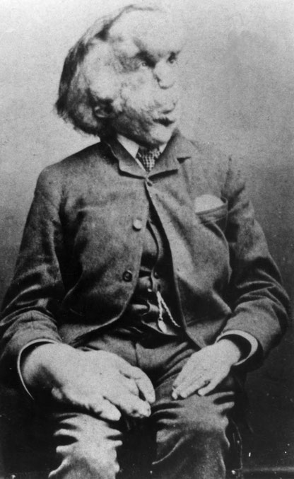 ※1:1889年のメリックの肖像写真