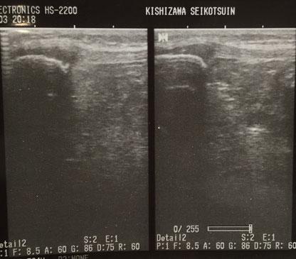 膝のエコー画像