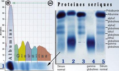 Electrophorèse des protéines sériques