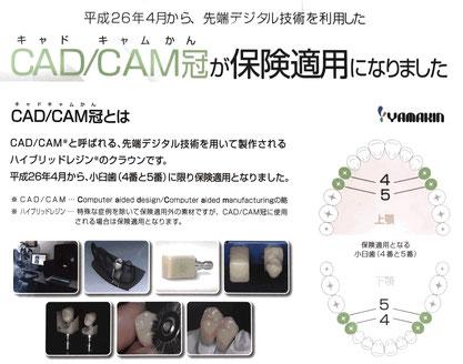 札幌市豊平区西岡 大西歯科クリニック CAD/CAM冠説明写真