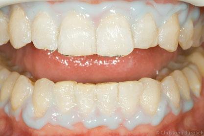 Zahnaufhellung in der Zahnarztpraxis