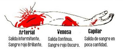 Tipos de hemorragias según su procedencia
