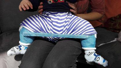 Kind mit Becken-Bein-Gips