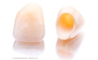 Zahnkronen aus reiner Keramik: Ästhetisch und gut körperverträglich