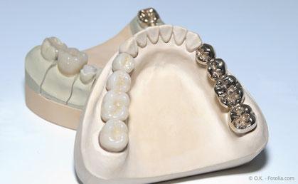 Zahnbrücke aus Keramik (links) und aus Metall (rechts)