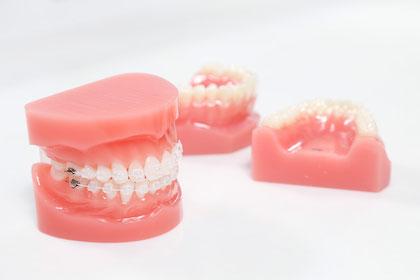 歯の矯正装置