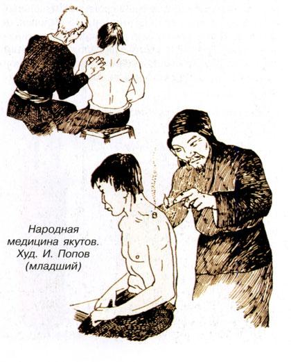 Народная медицина якутов. Худ. И. Попов (младший)