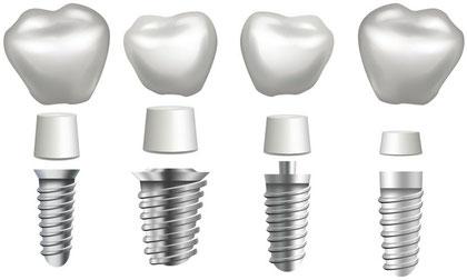 Bei Zahnarzt Christian Eis wird ausschließlich schablonengeführt implantiert.