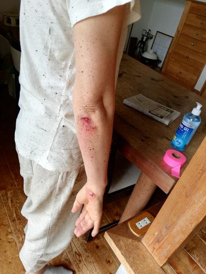 陶芸家 ブログ R工房 茨城県笠間市 陶器 焼き物 転倒 けが