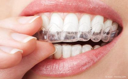 Transparente Folie für die Zahnregulierung statt Zahnspangen mit Invisalign