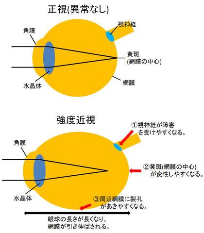 尼崎 眼科 緑内障 日帰り白内障手術 強度近視 網膜裂孔 緑内障 黄斑変性 病的近視