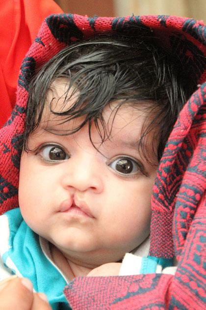 Baby mit Hansenschate