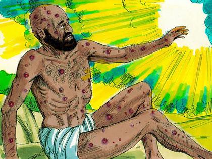 Satan persiste dans sa calomnie et prétend que l'homme supporte beaucoup de choses tant qu'on ne l'atteint pas dans sa chair: « peau pour peau». Il se trompe car, alors que Job est frappé d'un ulcère purulent sur tout son corps, il demeure intègre.