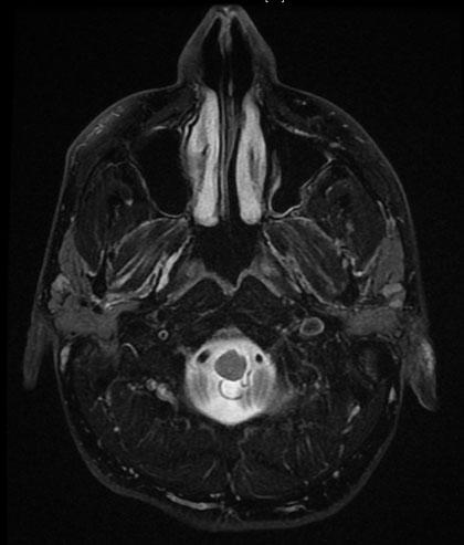 Glücklich sein, ist ein Gefühl, dass von innen kommt und im Kopf sitzt. Hier ein MRT-Bild von meinem Kopf.